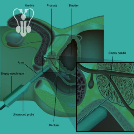 Biopsja prostaty Lublin, Gastromed