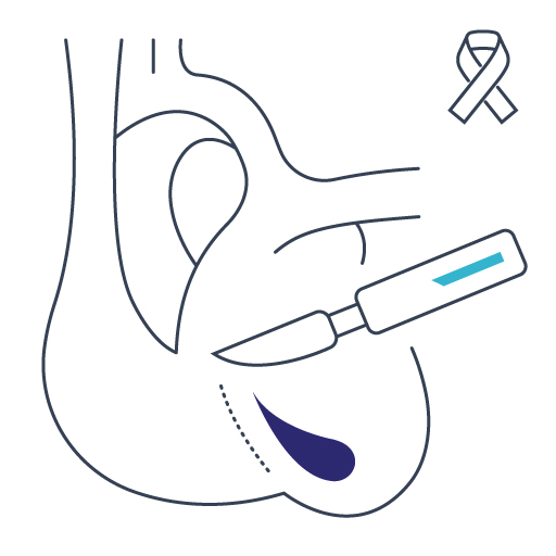 Chirurgia onkologiczna Lublin, Gastromed
